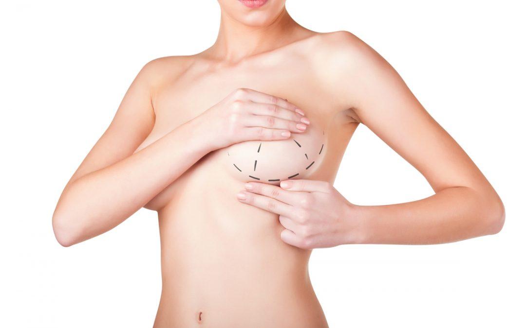 Preguntas frecuentes acerca del aumento mamario